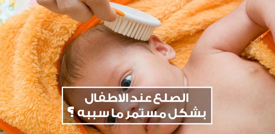 مشكل تساقط الشعر الذي يؤدي الى الصلع عند الاطفال