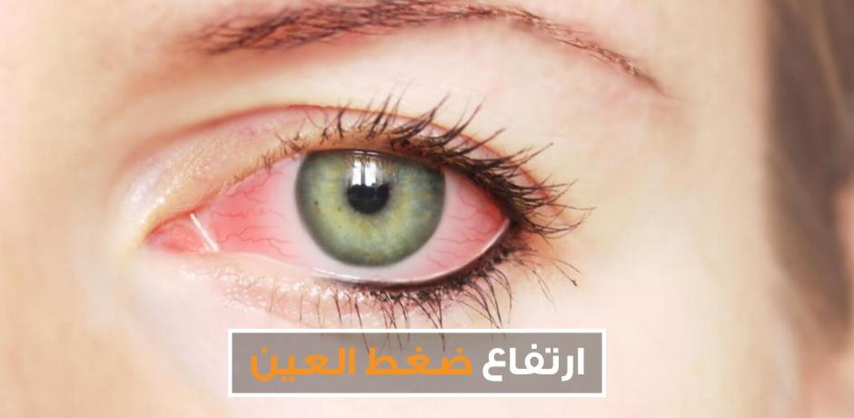 ارتفاع ضغط العين : مرض سارق البصر