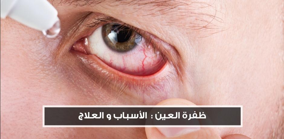 ظفر العين : الجراحة ليست الحل النهائي ..