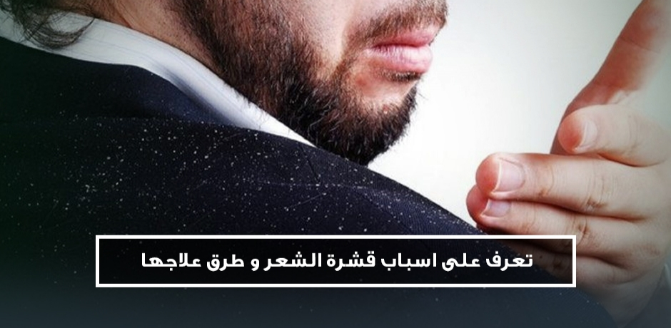 نصائح فعالة للتخلص من  قشرة الرأس