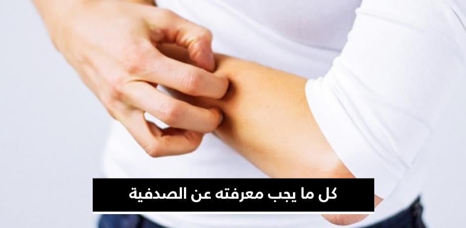 الصدفية ونصائح لتخفيف أعراضها