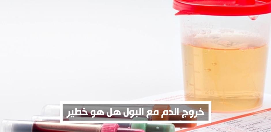 ظهور دم بالبول:متى يكون الامر خطير ومقلق