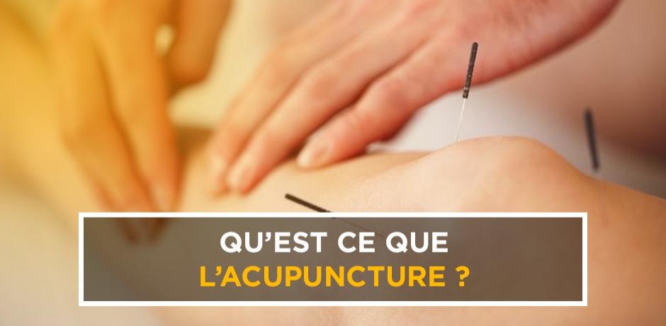 Qu'est-ce que l'acupuncture?