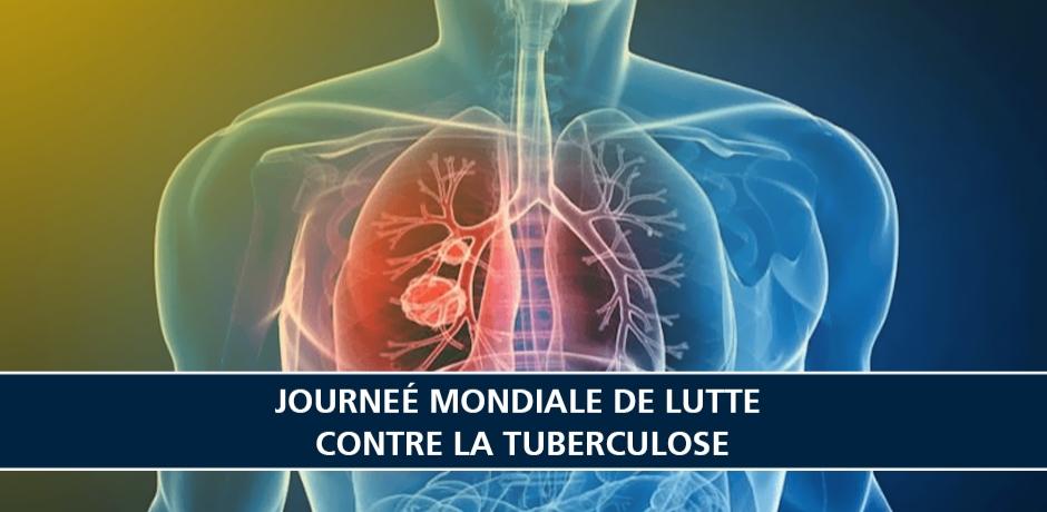 La Tuberculose : Sensibiliser et diagnostiquer