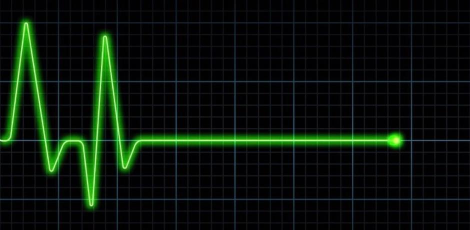 الموت المفاجئ ... توضيحات اختصاصي في أمراض القلب